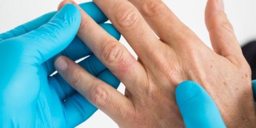 درمان آلرژی به فلزات